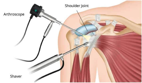 Shoulder Arthroscopy In Bangalore