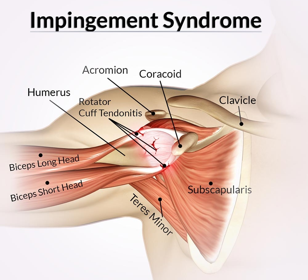 Impingement Syndrome Treatment Bangalore
