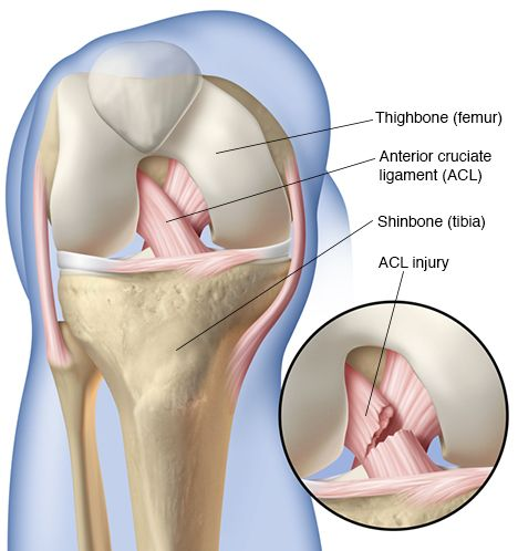 ACL-Reconstruction-Surgery-Bangalore