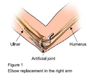 Elbow Replacement Surgery Bangalore