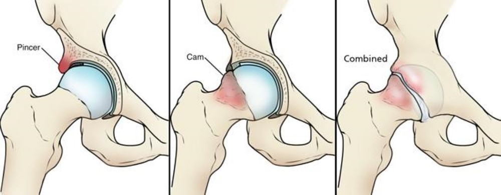 femoroacetabular-impingement-treatment-bangalore