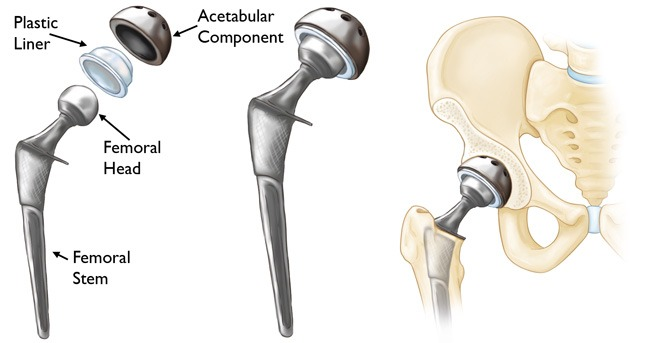 Hip Replacement Surgery Bangalore,India