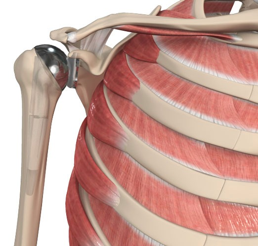 Shoulder Replacement in Bangalore