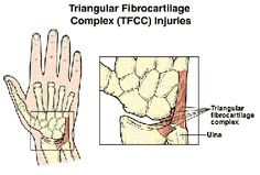 triangular-fibro-cartilage-tear